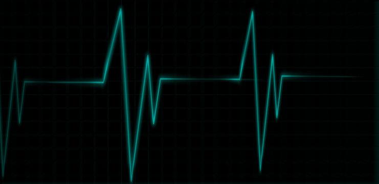 medical heart moniter