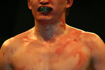 boxer after fight