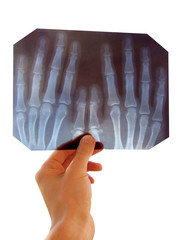 roentgenogram (x-ray)