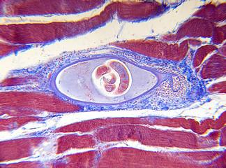 microscope-trichinella spiralis