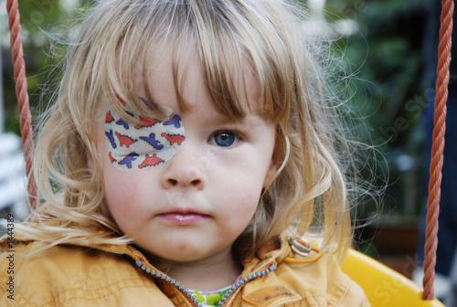Как заниматься с ребенком при окклюзии глаза