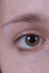 right eye 3