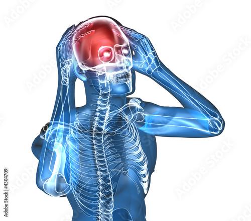 Диета при атеросклерозе сосудов головного мозга: что