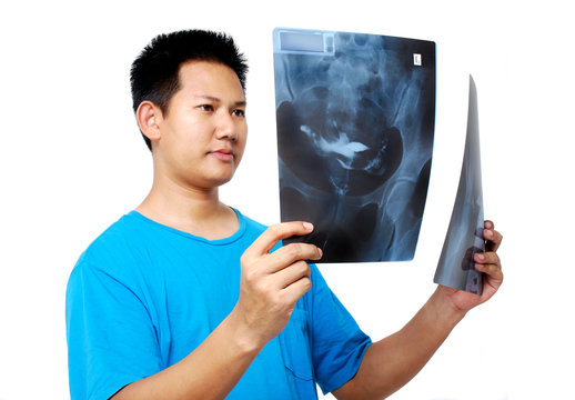Doctor checking X-ray film
