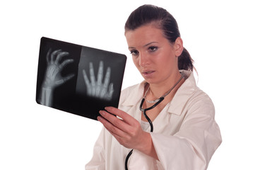 Doctor female holding x ray of hand