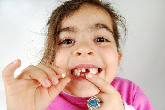 une dent de moins !!