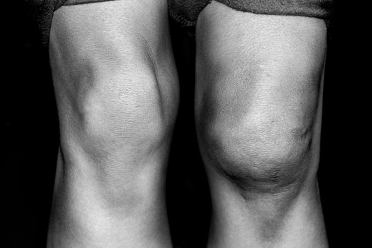 Torn Medial Patellar resulting from a knee dislocation