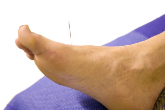 Man with acupuncture needle in foot