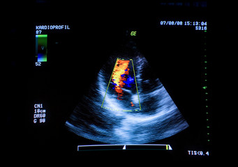 Heart ultrasound image on computer screen.