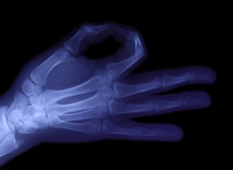 radiography of hand