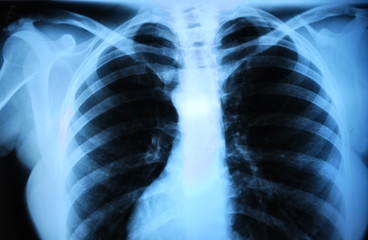 human body's radiograph