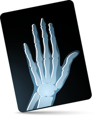 X-ray photo of hand