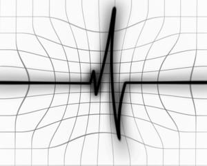Heart beat on monitor
