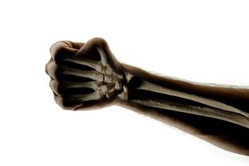 see through human arm