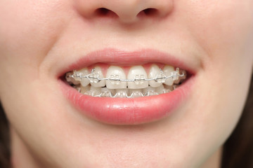 Girl smiles with braces