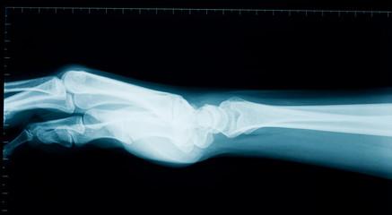 Hand wrist x-ray
