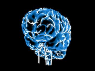 Gehirn - Vertebralis und Carotis