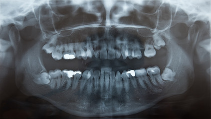 X-Ray of problematic wisdom teeth for extraction