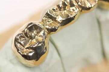 alte goldene Schwebebrücke