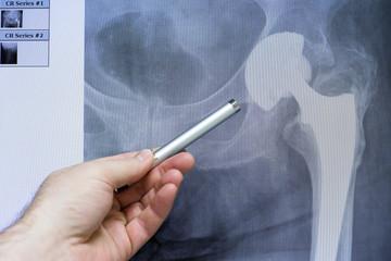 eine Hüfttotalendoprothese wird am Röntgenschirm demonstriert