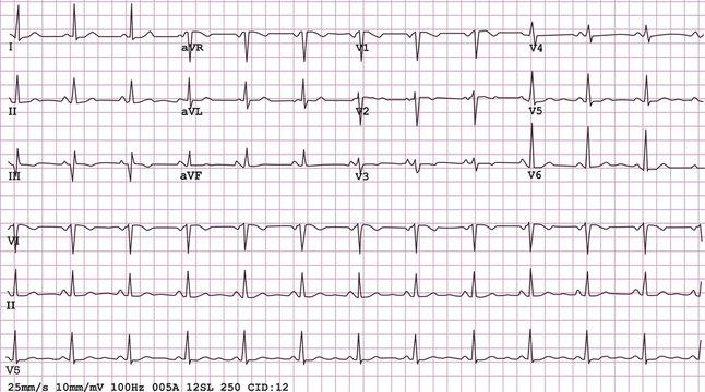 Example of a normal 12-lead sinus rhythm ECG