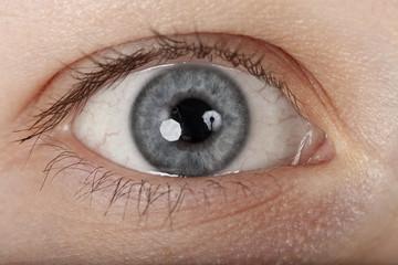 Auge grau