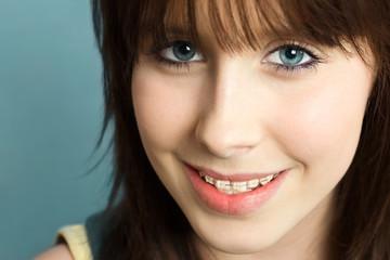 Hübsches Mädchen mit Zahnspange
