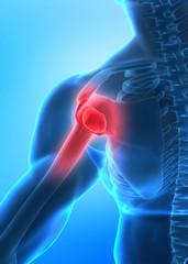 Arm pain concept