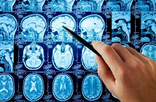 MRI,brain