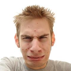Teenager Acne Problem