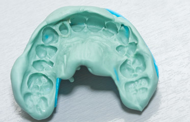 Dental imprint - impression taken with silicone material