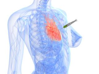 Herz - Injektion