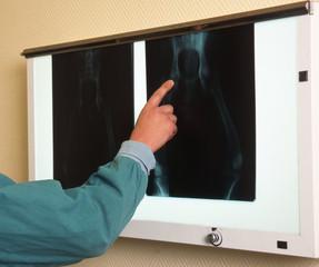 radiographie de la hanche d'un chien - dysplasie