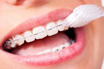 Mund mit Zahnspange beim Putzen