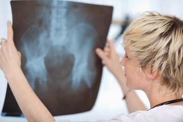 junge ärztin prüft röntgenbild