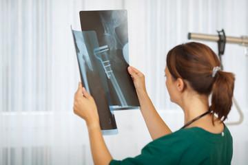 junge ärztin mit röntgenbildern