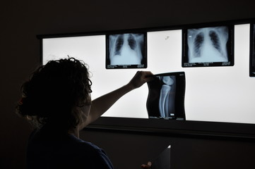 Radio - Scanner - Imagerie médicale
