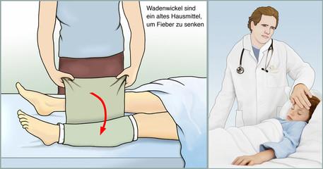 Erste Hilfe. Wadenwickel gegen Fieber
