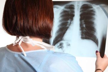 Polmoniti eosinofile- Malattie polmonari