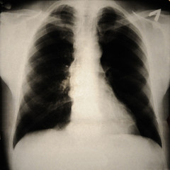 human chest with Forestier's disease on x-ray