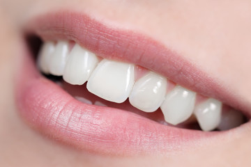 Close up of white, shiny and healthy smile