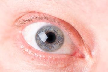 eye macro.