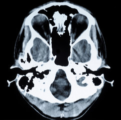 CT photo of human brain