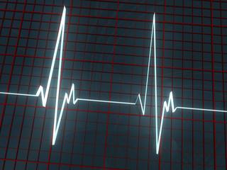 light cardiogram