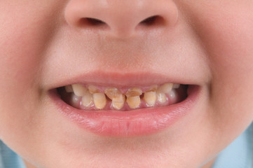 Little child  with broken and rotten teeth.