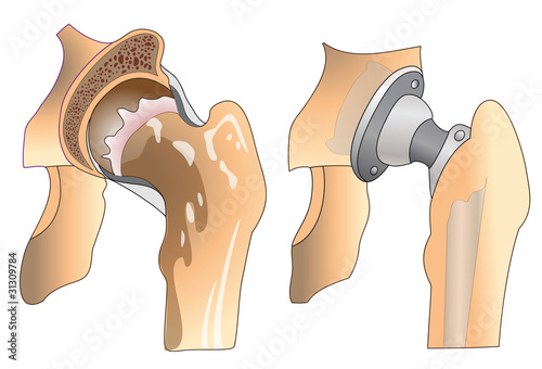 hip joint prothesis