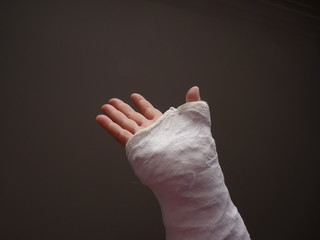 Injured hand wth a cast