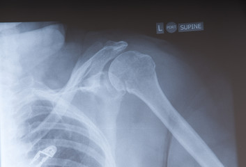 x-ray of a persons shoulder