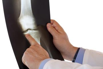 Arzt zeigt mit Zeigefinger auf Röntgenaufnahme eines Kniegelenks