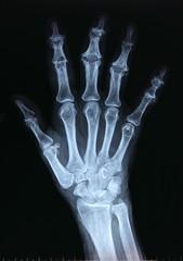 X-ray / Hand